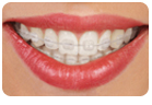 Clear Ceramic Braces In Glendale CA