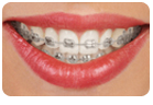 Traditional Metal Braces In Glendale CA