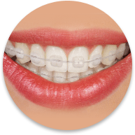 clear braces glendale ca braces