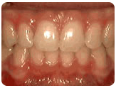 Clear Ceramic Braces Glendale CA
