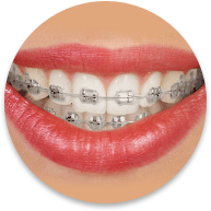 metal braces in glendale ca