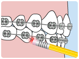 Poking Wire On Braces