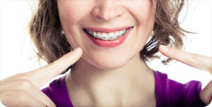 second opinion orthodontist in glendale