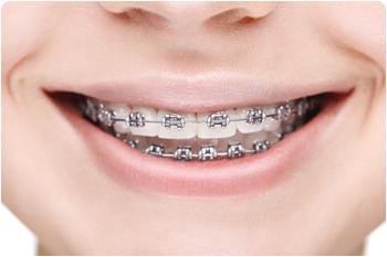 All-About-Traditional-Braces-By-Your-Favorite-Glendale-CA-Orthodontist