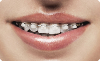 What You Should Know About Ceramic Braces By Your Favorite Glendale Orthodontist