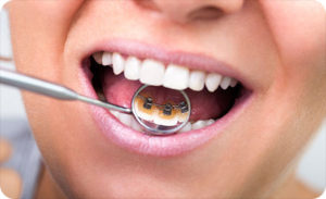 braces behind your teeth in glendale ca