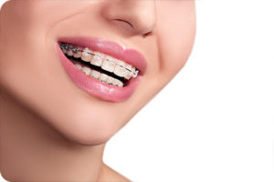 clear braces in glendale ca