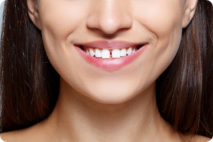 glendale orthodontist